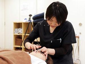 美容鍼を打つスタッフ